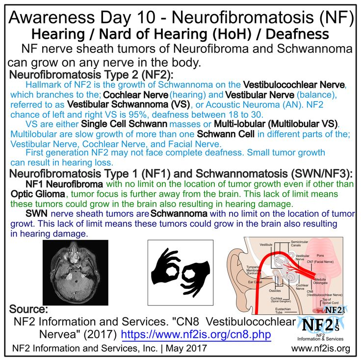 Awareness Day 10 – Neurofibromatosis  Day 10 – Hearing / Hard of Hearing (HOH) / Deafness  Neurofibromatosis (NF) nerve sheath tumors of Neurofibroma and Schwannoma can grow on any nerve in the body. _____________________ Neurofibromatosis Type 2 (NF2) Hallmark of NF2 is the growth of Schwannoma on the Vestibulocochlear Nerve, which branches to the; Cochlear Nerve (hearing) and Vestibular Nerve (balance). These tumors are referred to as Vestibular Schwannoma (VS), or Acoustic Neuroma (AN)…