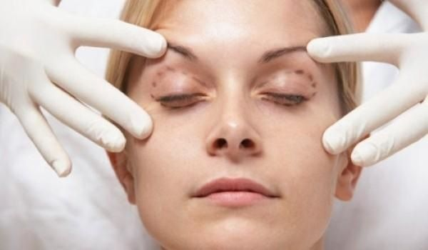 how much does eyelid surgery cost