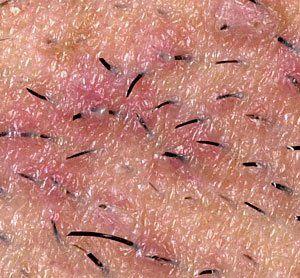 Painful Ingrown Hairs