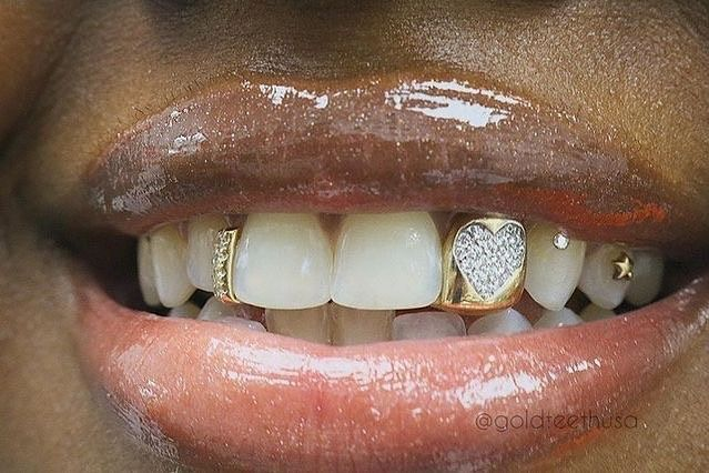 Queens N Silk Fashion Visual On Instagram Vs Diamonds Set In The Form Of A Heart Accompanied With Diamond Gap Filler Grillz Teeth Jewelry Gold Grillz