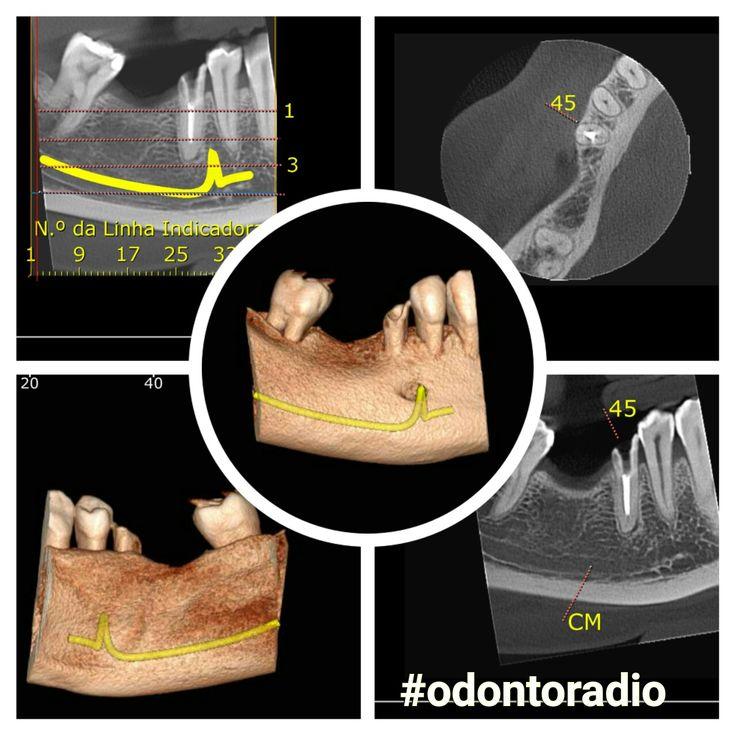 Tomografias Odontoradio. #odontoradio #odontologia #radiologia #tomografia #conebeam #lajeado #teutonia #implantes #orto #implantodontia #imaging #radiologiaodontologica #tomography #radiology #odontoiatria #implantodontia #imaging #dentist #dentistry #oralradiology  #ctbmf #endodontia