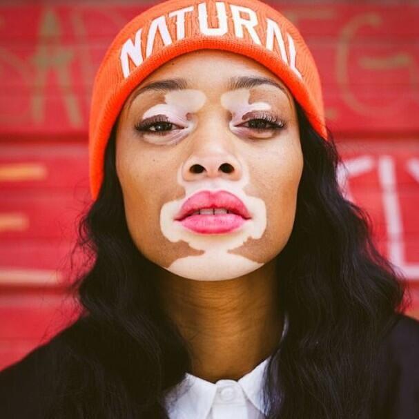 Chantelle Brown-Young casse les codes de la beauté