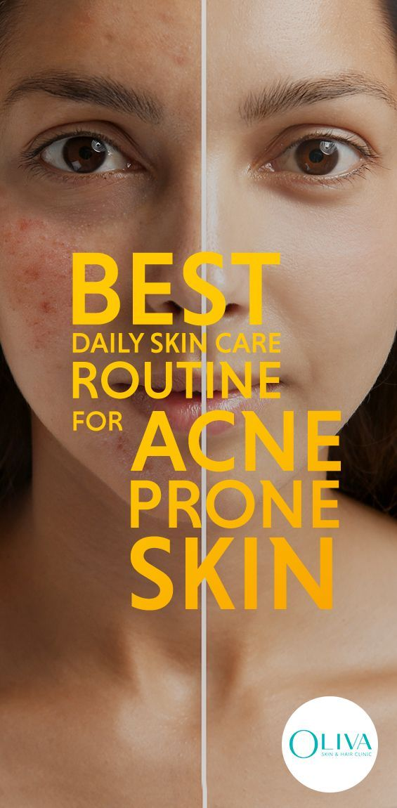Skin Care Routine On A Daily Basis For Your Skin Type Is Essential For Any Man Or Wom Daily Skin Care Routine Acne Prone Skin Care Routine Acne Prone Skin Care
