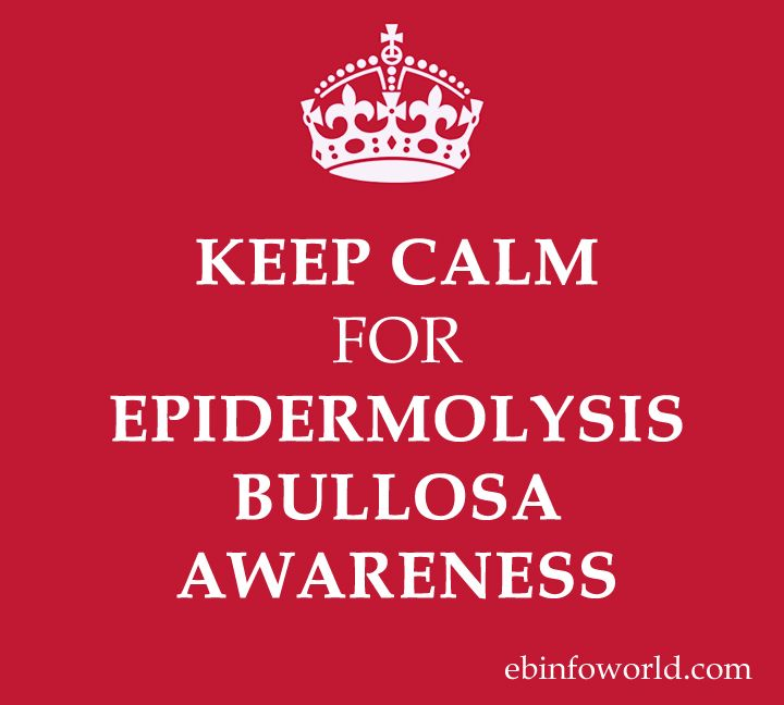 epidermolysis bullosa introduction  epidermolysis bullosa 2012- 2013 overview of the disease epidermolysis bullosa is a distressing and painful genetic skin condition[1] this is a rare inherited condition commonly known as butterfly disease in children[2.