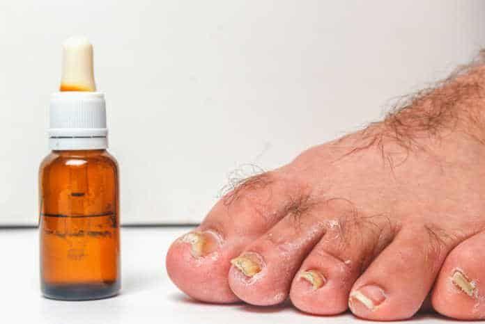 Vinegar penetrate toe nail