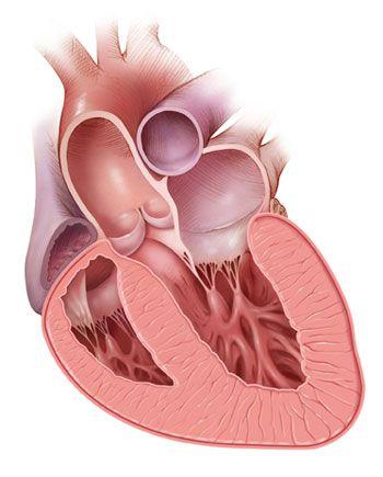 congestive heart failure symptoms, conjestive heart failure, stages of dying from congestive heart failure, deaths from heart failure READ MORE AT http://medical-helpful-info.blogspot.com/2012/10/heart-failure-not-responding-to-drugs.html