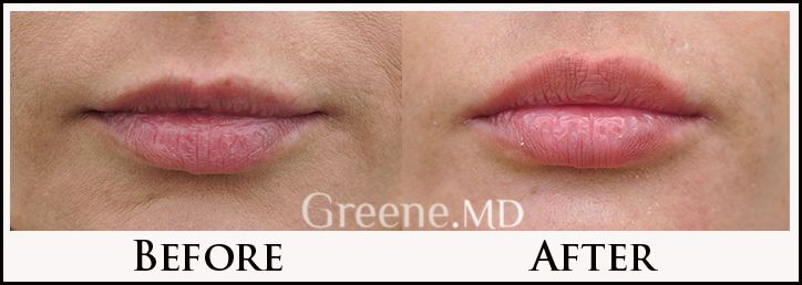 Fuller lips with precise filler injection