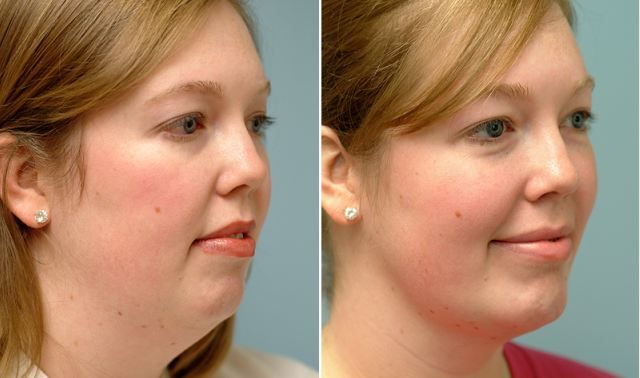 """Here is a pretty useful video which can help you to get rid of a double chin. It can also help with toning loose skin. It is all about the technique called """"natural face lift"""". Watch the video and practice the presented exercises in order to tighten up your loose skin and lose double chin. …"""