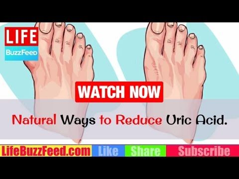 7 Natural Ways to Reduce Uric Acid. How to Reduce Uric Acid? Foods to Avoid with Gout Hyperuricemia https://homeremediestv.wordpress.com/2017/04/18/7-natural-ways-to-reduce-uric-acid-how-to-reduce-uric-acid-foods-to-avoid-with-gout-hyperuricemia/ #HealthCare #HomeRemedies #HealthTips #Remedies #NatureCures #Health #NaturalRemedies  #HealthCare #HomeRemedies #HealthTips #Remedies #NatureCures #Health #NaturalRemedies  http://HomeRemediesTV.com/Best-Supplements How to Lower Uric Acid Naturally…