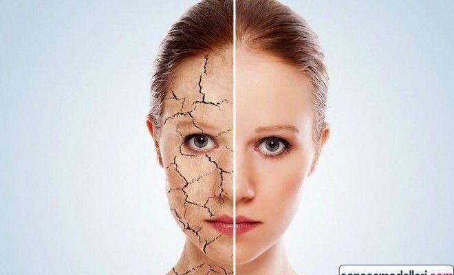 Kuru ciltler için muz maskesi yapımı – Kuru cilt bakım maskesi