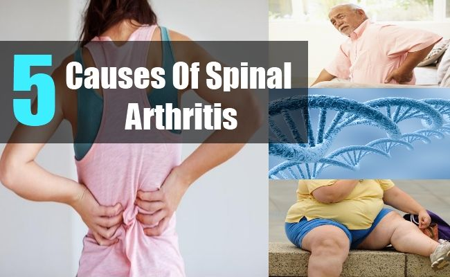 Causes Of Spinal Arthritis