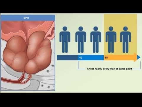 Prostate Enlargement: Benign Prostatic Hyperplasia - BPH Causes, Symptoms, Treatment Animation Video - YouTube