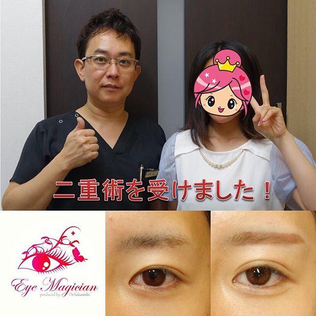 2016/11/14 07:02:58 eye_magician 症例:兵庫県在住、17歳、学生 ✨グランドライン法®(特殊埋没6点法)✨ 2年連続 日本美容外科学会で発表し大人気 アンケート調査で98%の満足度(2016年発表)  腫れない・バレない・戻らない 究極の埋没法二重術を目指して http://ameblo.jp/saka24x/entry-11594319477.html  グランドライン法®は1本の糸を特殊な方法で皮膚側に6点で固定し、糸玉を結膜側に埋め込みます。 そのため、術後の腫れが少なく、目を閉じても全く分からない、究極に長持ちする二重ラインになります  人気の秘密はこれですね スッピンでも綺麗な二重、手に入れませんか  0120-832-900…