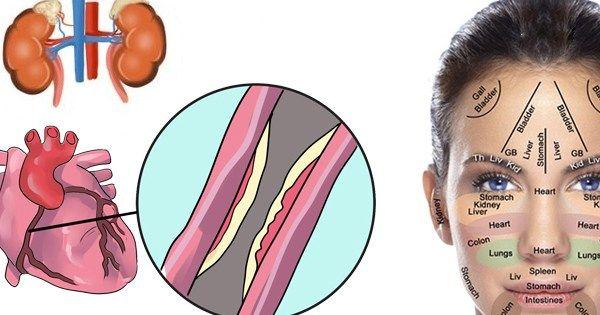 Intuicyjnie wiemy, że osoby o czystejskórze, bez żadnych przebarwień, trądziku są zdrowe. Skóra potrafi powiedzieć naprawdę wieleo naszym wewnętrznym zdrowiu i wielu specjalistów nie tylko dermat…