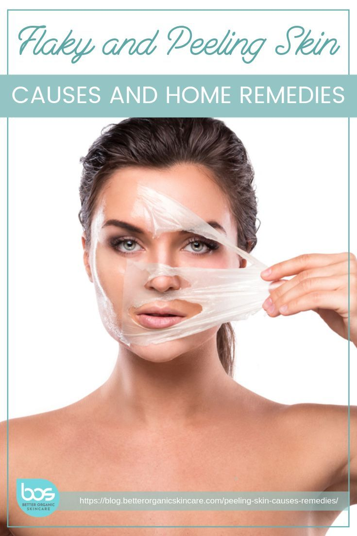 Best Home Remedies For Peeling Skin On Your Feet Peeling Skin Dry Feet Remedies Dry Peeling Skin