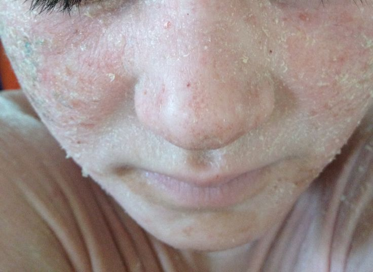 Natural cure for psoriasis, Topical Steroid Withdrawal TSW 3