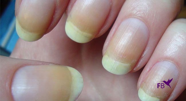 Gele Nagels Na Nagellak Voorkomen En Oplossen