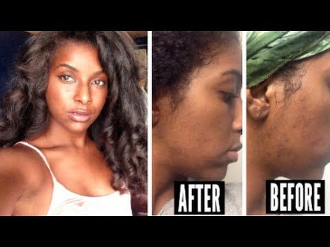♡ MORNING & NIGHT SKIN ROUTINE ♡ HOW I FADED MY DARK MARKS/ ACNE SCARS FAST ♡ 2 Month Comparison Pictures included! I am definitely not the healthiest eater,...