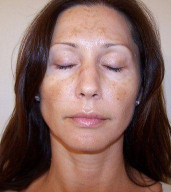 Remedios caseros para combatir manchas en la cara