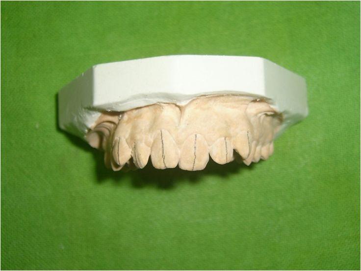 Journal of dentistry and dental medicine indirect
