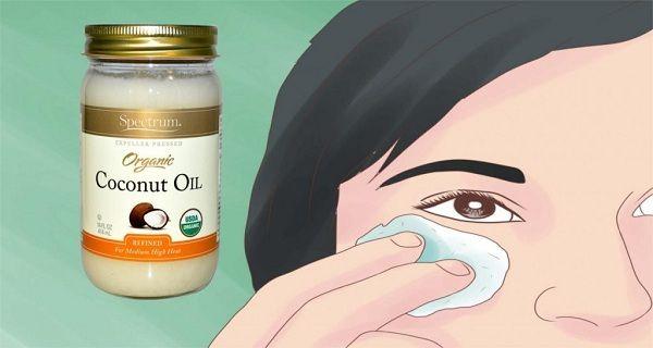 Advertisement Το λάδι καρύδας είναι ένα από τα πιο ευεργετικά συστατικά, όταν πρόκειται για την υγεία και την ομορφιά. Εδώ σε αυτό το άρθρο θα σας παρουσιάσουμε κάποιες συνταγές που θα παρέχουν σίγουρα μερικούς λόγους για να αρχίσετε να χρησιμοποιείτε λάδι καρύδας και να δείτε τα οφέλη. Για τις παρανυχίδες Advertisement Το μασάζ με λάδι …
