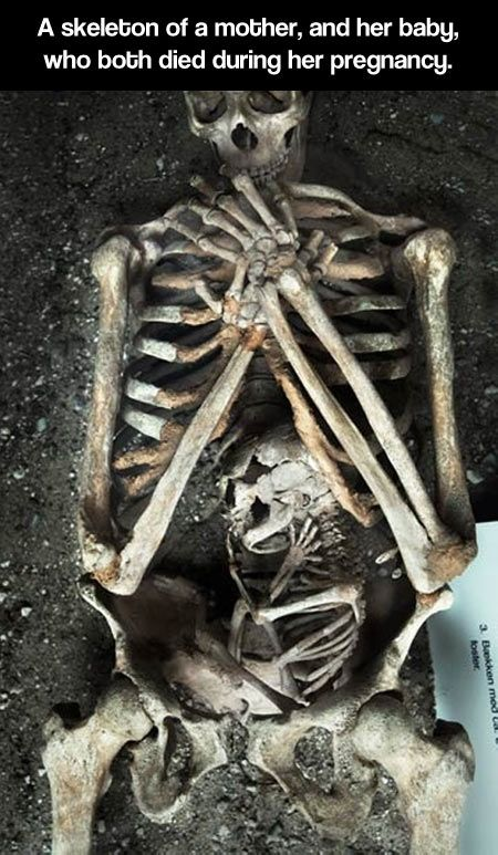 A skeleton of a mother and her baby…
