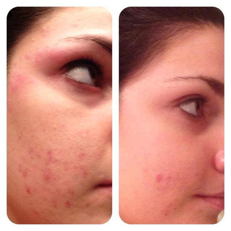 My personal Before and After picture!  After only 3 months of using Rodan and Fields Unblemish regimen for acne, this was the result! Never had a skincare product that actually worked like this!