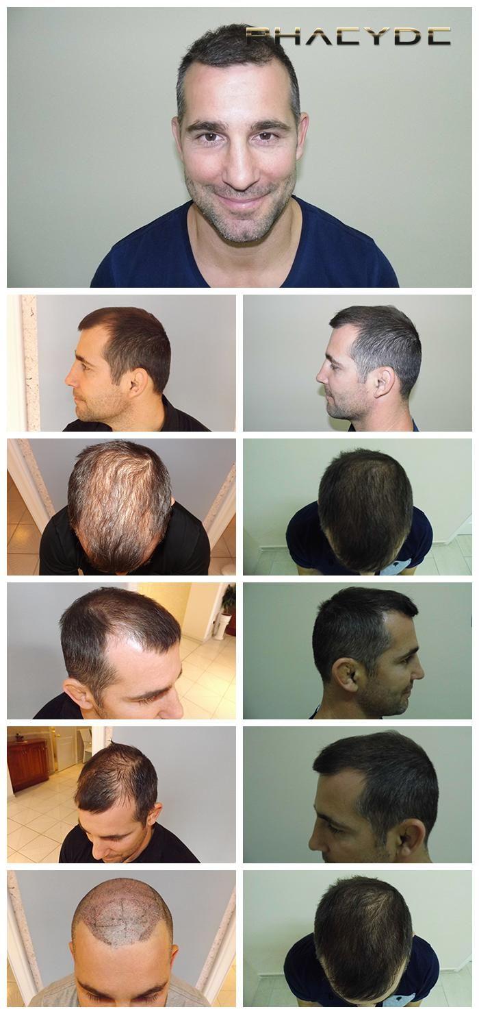 """Mere end 3500 + hår blev transplanteret i en 1 dag lang behandling. Dette billede viser de vidunderlige resultater af hår implantater, som blev foretaget i PHAEYDE Clinic. <a href=""""http://dk.phaeyde.com/har-implantation"""" rel=""""nofollow"""">dk.phaeyde.com/har-implantation</a>"""