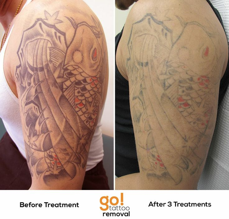 Tattoo Removal Before And After Sleeve Better than 60% fading after 3 ...