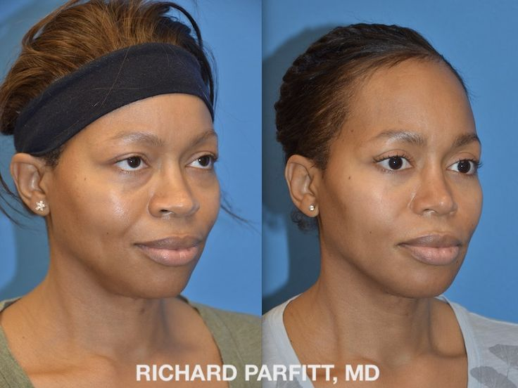 Revision Rhinoplasty Blepharoplasty and Chin Augme…