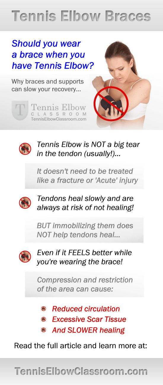 Tennis Elbow Treatment: Braces, Bands and Splints