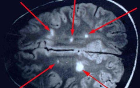 Un médico italiano era obtener resultados espectaculares con un nuevo tipo de tratamiento para la esclerosis múltiple o la esclerosis múltiple, que afecta a cerca de 2,5 millones de personas en tod…