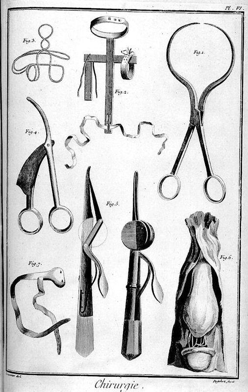 Fig. 1 : Pincettes ou tenettes dites helvétiennes, proposées par Helvétius pour l'opération du cancer Fig. 2 : Machine pour redresser les enfants bossus Fig. 3 : Base d'un brayer pour les hernies inguinales et de l'ombilic Fig. 4 : Bistouri gastrique Fig. 5 : Bistouri herniaire de M. Le Dran Fig. 6 : Sac herniaire qui contient l'intestin dans une descente Fig. 7 : Brayer ou bandage pour contenir une hernie inguinale. Tiré de l'Encyclopédie de Diderot et d'Alembert, 1763.