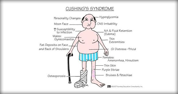 Cushing syndrome or cushing's syndrome results from excessive adrenocortical activity. Nursing care plans available here.