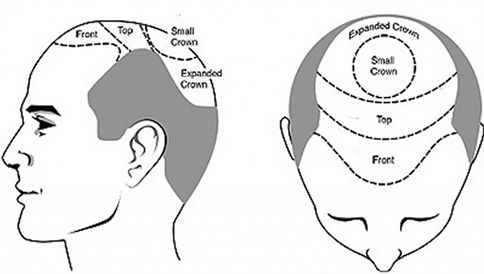 It is quite advisable to choose hair transplantation at avenues Clinic because it can offer better hair results at an affordable Hair Transplant Cost in Ahmedabad. Hair transplantation can be termed as most advanced hair technique for fighting hair baldness issues.