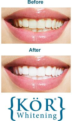 We are thrilled to provide a fantastic teeth whitening procedure called KöR Whitening. Most professional whitening methods achieve the desired results; however, even the best treatments can fail on severely stained teeth. For example, the type of staining you may have incurred if you ever took the antibiotic tetracycline. But now, with KöR Whitening, even these intensely stained teeth can become a dazzling white.