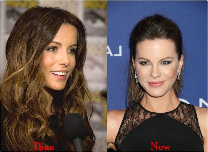 Kate Beckinsale Nose Job Plastic Surgery Before And After Photos