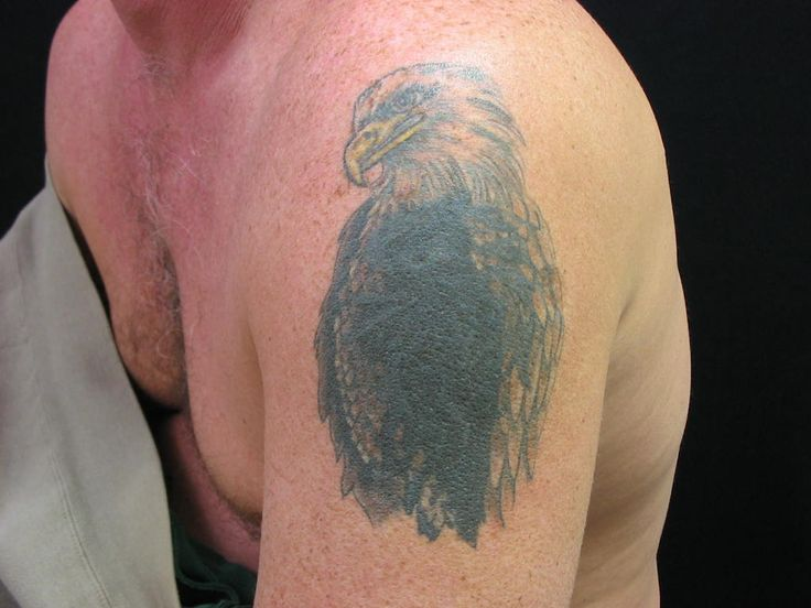 14 Best Tattoo Removal Cost Images On Pinterest Natural