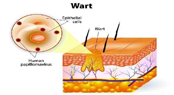 Get Rid Of Warts With Apple Cider Vinegar  http://www.wartalooza.com/treatments/compound-w-wart-remover