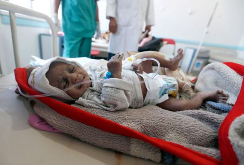 Yemen facing worst cholera outbreak in the world health...  Yemen facing worst cholera outbreak in the world health organizations say  The U.N. health agency says there are now more than 200000 suspected cases of cholera in an outbreak in war-torn Yemen many of them children.  UNICEF director Anthony Lake and World Health Organization chief Margaret Chan said in a statement Saturday we are now facing the worst cholera outbreak in the world with an average of 5000 new cases every day. The…