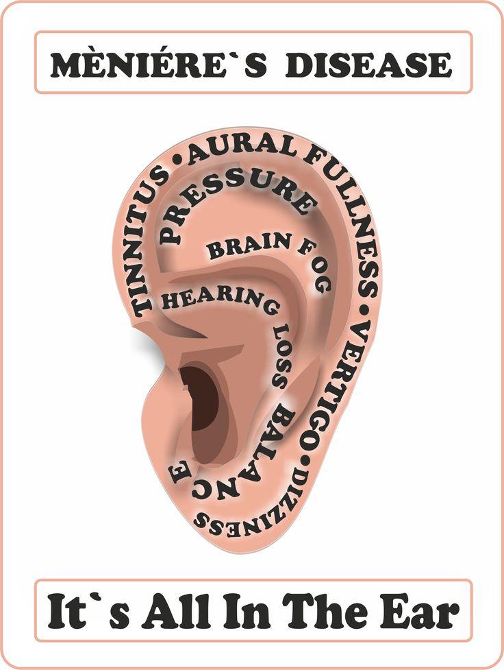 how to fix inner ear dizziness