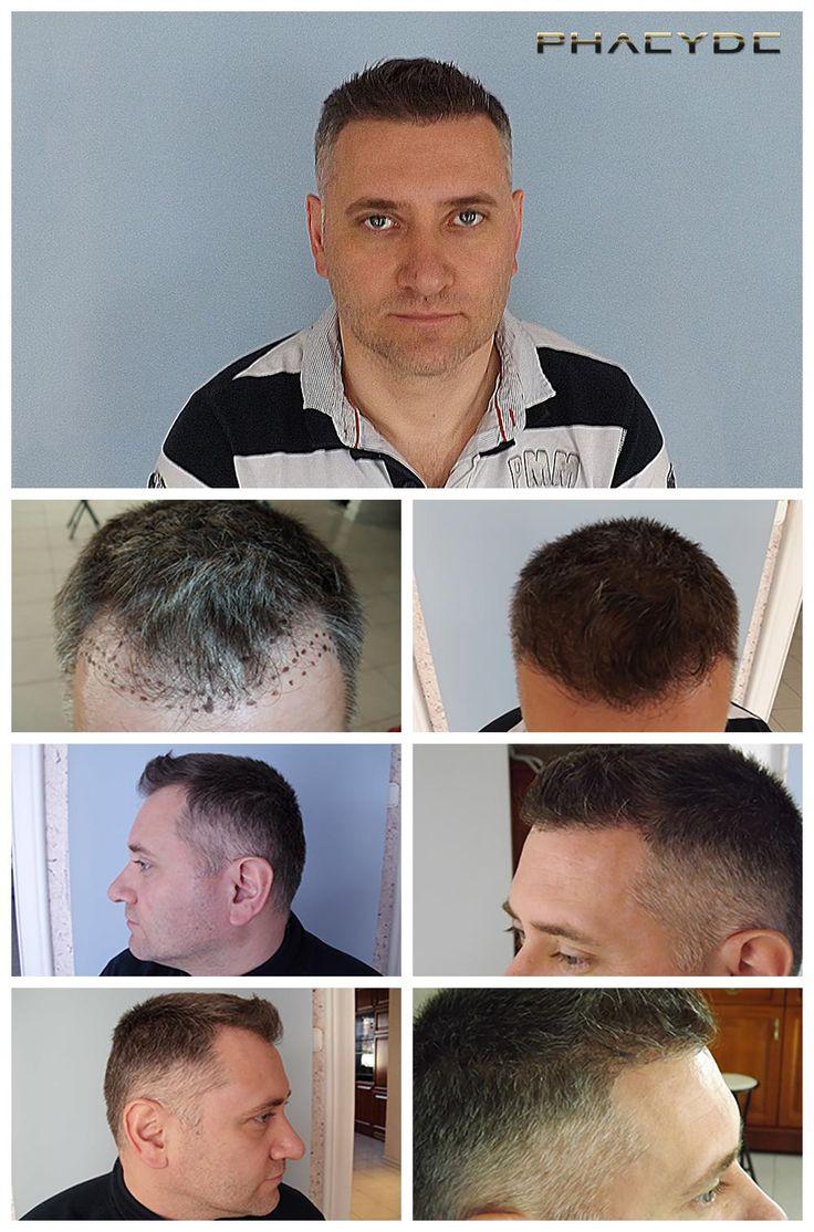 Trasplante de pelo de 6000 Pelos Balazs estaba quedando calvo en sus zonas del templo: 1,2. La zona no era muy grande, sin embargo el equipo quirúrgico tuvo que implantar extrema denso, con el fin de achive el look más natural posible. Llevado a cabo por la Clínica PHAEYDE. http://es.phaeyde.com/trasplante-de-cabello