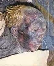 9 foot Nephilim Skeleton Found in Indiana. Indiana Scientist Say it Belongs to Ancient White Race