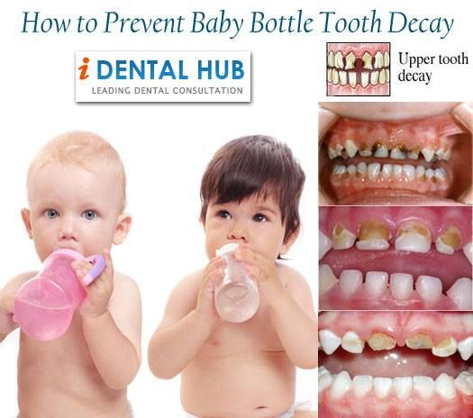 How to Prevent Baby Bottle Tooth Decay