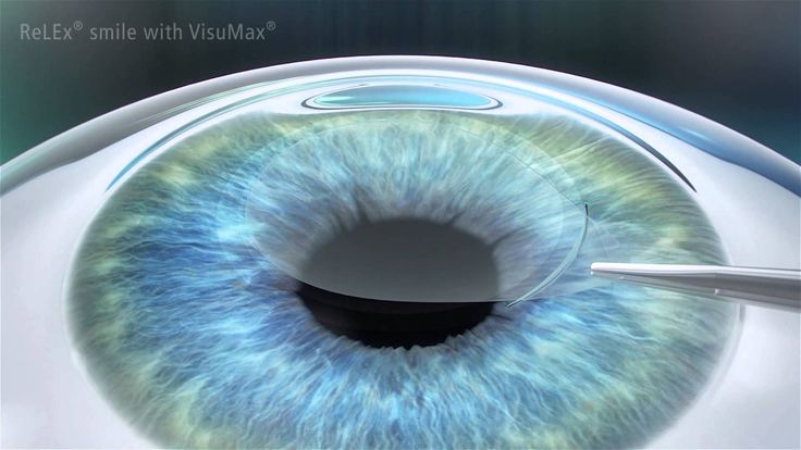 Everything You Need To Know About SMILE Eye Surgery  LASIK has been the go-to procedure for corneal correction for many years. It is a safe and simple procedure that uses a tiny metal blade to incise a very small flap of corneal tissue, which is then folded back to allow your ophthalmologist access to…