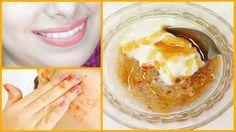 Ez egy csodálatos otthoni orvosság, amely természetes módon fehéríti az arcbőrt otthoni körülmények között.  Ez a fehérítő nem tartalmaz káros vegyi anyagokat és csodákat tesz a bőrrel, feszesebbé teszi és világosítja a bőr tónusát 15 napon belül.  Szükséges hozzávalók:   Frissen reszelt alma - 1 evőkanál  Sima túró vagy joghurt - 1 teáskanál  Friss citromlé - 1/2 teáskanál  Szódabikarbóna vagy sütőpor - 1 csipet  Méz - 1/2 teáskanál  Elkészítés:   Végy egy tiszta tálat  Tedd bele a…