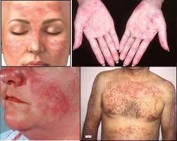 temukan cara alami menyembuhkan penyakit lupus tanpa efek samping negatif dengan pengobatan herbal Jelly gamat luxor