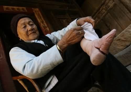 Gebroken tenen behalve grote teen voor evenwicht