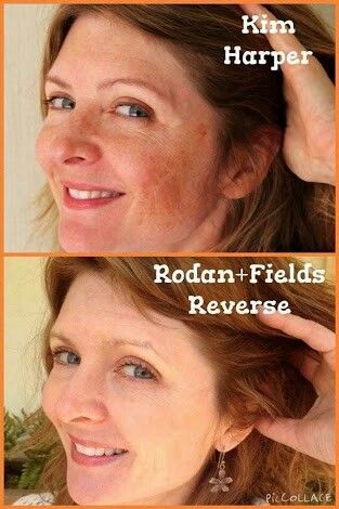 Melasma (pregnancy mask) has been a scourge for so many women!! But not anymore now we have Rodan and Fields!! gwendab2@gmail.com