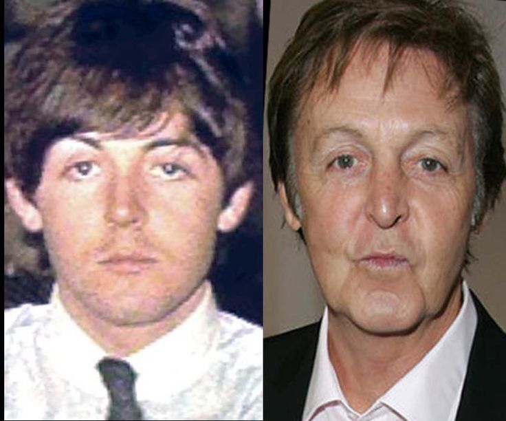 You might be one of the many people who want to know the reason why Paul McCartney does not want to have facelift on his plastic surgery? Description from simonesblog.net. I searched for this on bing.com/images